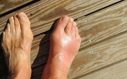 Tình trạng trẻ hóa bệnh gout và xu hướng hỗ trợ từ các thảo dược thiên nhiên ở Việt Nam