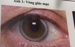Nhìn thấy vòng mờ mờ quanh mắt: Cảnh báo căn bệnh nguy hiểm ở trẻ nhỏ