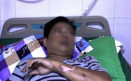 Cà Mau: Cấp cứu thành công bệnh nhân bị điện giật ngưng tim