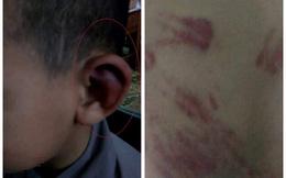 TT Thích Đức Thiện: Không thể chấp nhận việc nhà sư dùng đòn roi bạo hành trẻ mồ côi