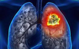 BS bày cách phân biệt triệu chứng ho để phát hiện ung thư sớm: Người hút thuốc cần chú ý