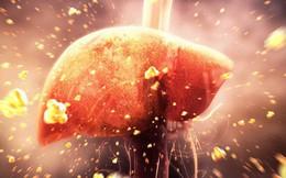 Tăng men gan là dấu hiệu gan bị tổn thương: Những thực phẩm phục hồi gan bạn nên ăn nhiều
