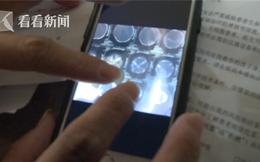 Thai phụ vừa nằm xuống đã sinh, bác sĩ đỡ không kịp khiến em bé bị chấn thương sọ não