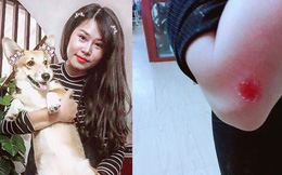 """Cô gái liều mình cứu chó khiến dân mạng cảm động: """"Bọn trộm chó không xong với tôi đâu!"""""""