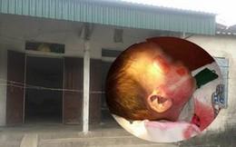 """Bộ Y tế yêu cầu báo cáo  vụ cháu bé tử vong với vết thương """"lạ"""" sau khi đi cấp cứu"""