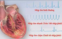 Chuyên gia tim mạch chỉ rõ 4 dấu hiệu rối loạn nhịp tim: Không chữa nhanh rất nguy hiểm