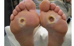 Tê chân: Coi chừng là biến chứng sớm của căn bệnh có thể khiến bạn phải cắt cụt chân