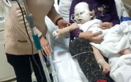 Bị máy sưởi đổ vào người, bé 6 tháng tuổi bị bỏng nặng