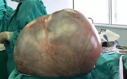 Người phụ nữ mang khối u nặng tới 34 kg trong bụng