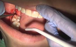 Có thể tử vong vì nhổ một chiếc răng số 8 hay không?