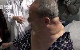 Mỗi ngày uống 1 lít rượu trong 25 năm, người đàn ông Trung Quốc 'biến dạng'