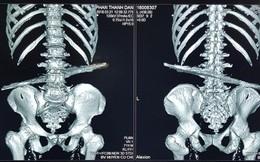Thanh sắt 40cm đâm xuyên bụng cụ ông 71 tuổi