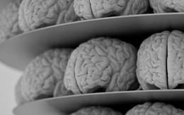 Các nhà khoa học đã tìm ra thuật toán mô phỏng bộ não con người, nhưng tiếc là không có cỗ máy nào có thể vận hành chúng được