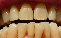 """Vạch mặt 6 """"thủ phạm"""" khiến răng bạn ố vàng"""