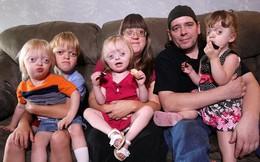 Bà mẹ 4 con bị bêu riếu, trở thành trò cười của cư dân mạng bởi liên tục mang thai và truyền cho con căn bệnh biến dạng mặt