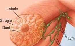 """Bác sĩ BV K khuyến cáo: Phát hiện trên ngực có """"khối u"""" này, chị em nên bình tĩnh xử trí"""