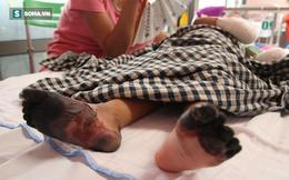 Sự thật về thông tin bé gái ở Lai Châu bị hoại tử chân tay do mắc bệnh Than hiếm gặp