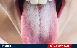Có nên vệ sinh lưỡi mỗi lần đánh răng để ngừa hôi miệng: Nha sĩ trả lời rất thuyết phục