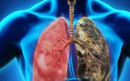 Ung thư phổi là nguyên nhân gây tử vong hàng đầu, nay đã có hy vọng mới