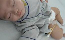 Bé 5 tháng tuổi đau bụng, nôn trớ, mẹ chẳng ngờ con mắc phải căn bệnh chỉ phụ nữ trưởng thành mới bị