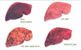 Ung thư gan: 17 nghìn người chết mỗi năm và 6 nguyên nhân cần nhớ