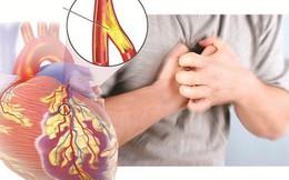 Cả đời không lo mắc các bệnh mạch vành chỉ nhờ 5 bước đơn giản sau đây
