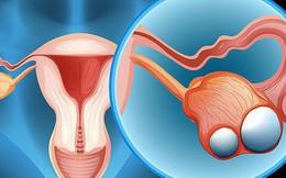 Những dấu hiệu ung thư buồng trứng cần dè chừng