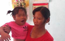 Cô giáo mầm non bị tố đánh bé 3 tuổi liệt dây thần kinh, méo mồm