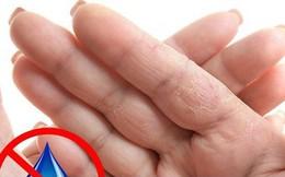 Dấu hiệu bàn tay cho thấy các vấn đề về sức khỏe của bạn
