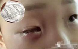 Bé 8 tuổi bị mù 1 mắt vĩnh viễn chỉ vì chiếc túi hút ẩm nhỏ xíu