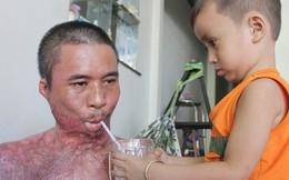 Bị điện giật cháy người không có tiền chạy chữa, bố xót xa nhìn con trai 4 tuổi không nhận ra mình