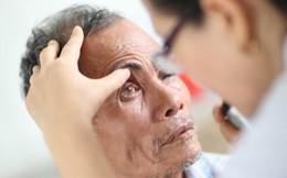 Biến chứng tiểu đường dễ gây mù mắt