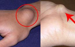 Xuất hiện cục u nổi bất thường ở cổ tay: Đừng bỏ qua vì đó có thể là dấu hiệu cảnh báo bệnh nguy hiểm
