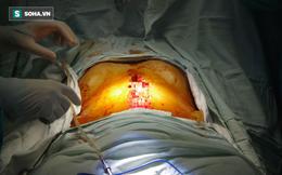 Hy hữu: Thanh sắt đâm xuyên từ bẹn vào đến bụng, nam thanh niên mất 4,5 lít máu