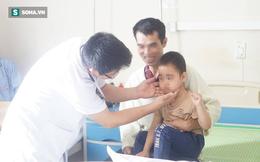 """Uống """"thần dược"""" chữa ho, bé 5 tuổi ở Sơn La bị lông mọc khắp mặt"""