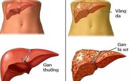 Bệnh lý về gan ở VN có xu hướng gia tăng: Đừng coi thường biểu hiện tổn thương gan sớm