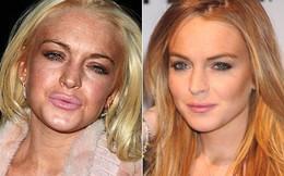 """Lindsay Lohan tuổi 32: Nhan sắc già nhăn nheo trước tuổi, phải """"chạy trốn"""" khỏi Hollywood"""