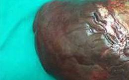 Ca bệnh hiếm: Khối u gan 5kg ở bệnh nhân u cơ mỡ mạch gan