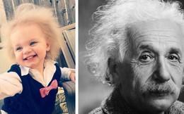 Hãy hạnh phúc với mái tóc của mình dù nó bết, vì cô bé này tóc yếu đến mức không chải nổi cơ
