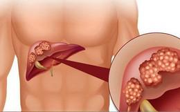 Buồn nôn kéo dài - cảnh giác với ung thư gan
