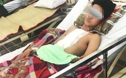 Báo động đỏ liên viện cứu bệnh nhân bị đâm thủng tim, phổi nguy kịch