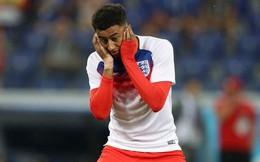 """Đội tuyển Anh """"méo mặt"""" khi binh đoàn côn trùng """"hỏi thăm"""" World Cup"""