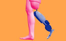 Đã có thể chế tạo ra chân tay giả đem lại cảm giác như thật cho con người