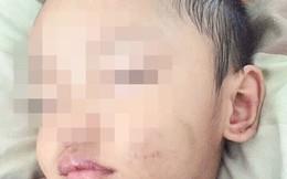 Những hình ảnh đau lòng của bé trai 3 tuổi nghi bị cha dượng bạo hành