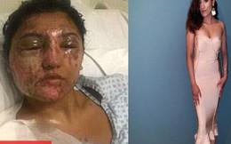 Sự phục hồi đáng kinh ngạc của cô gái bị tạt axit vào đúng ngày sinh nhật