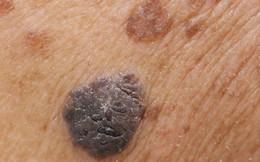 Nắng nóng có gây ung thư da?