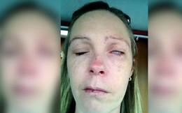 Bị bọ ve trong vườn cắn, người phụ nữ bị liệt nửa mặt, không thể nói và không thể nhắm mắt
