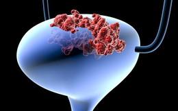 """Bác sĩ tiết lộ 3 dấu hiệu """"tố cáo"""" ung thư bàng quang: Cả nam và nữ đều phải đề phòng"""