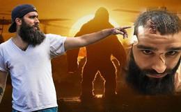 Toàn cảnh vụ đạo diễn 'Kong' bị đánh trọng thương ở TPHCM