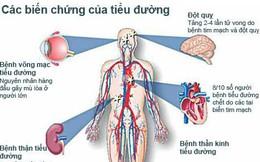 Những cơ quan bị ảnh hưởng nghiêm trọng do đái tháo đường